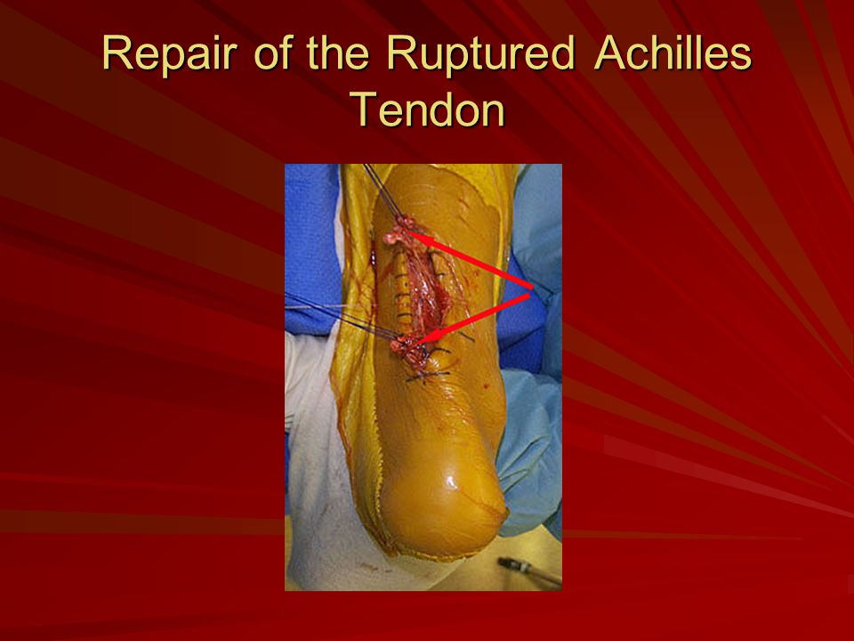 Repair of the Ruptured Achilles Tendon