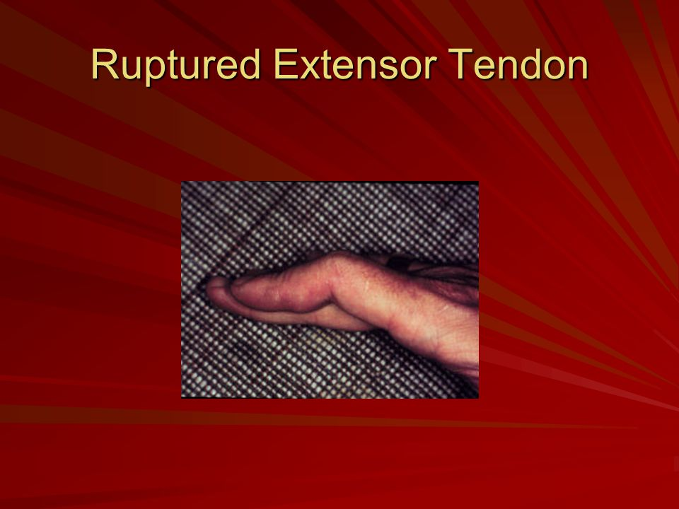 Ruptured Extensor Tendon