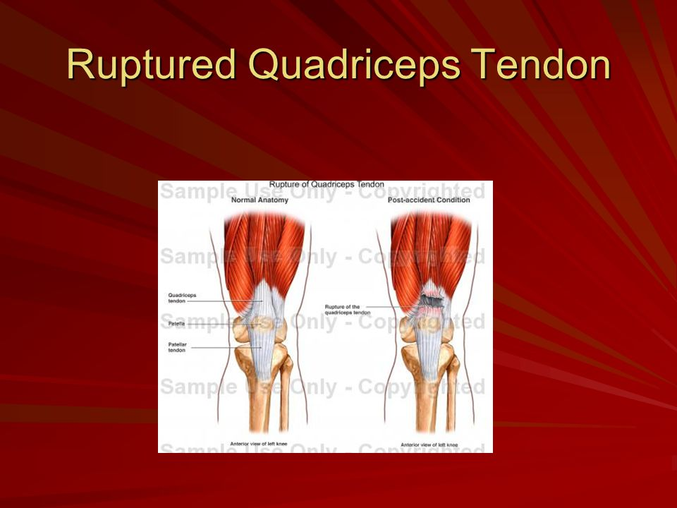 Ruptured Quadriceps Tendon