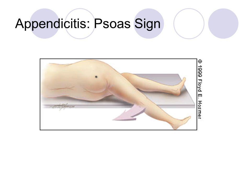 Appendicitis: Psoas Sign