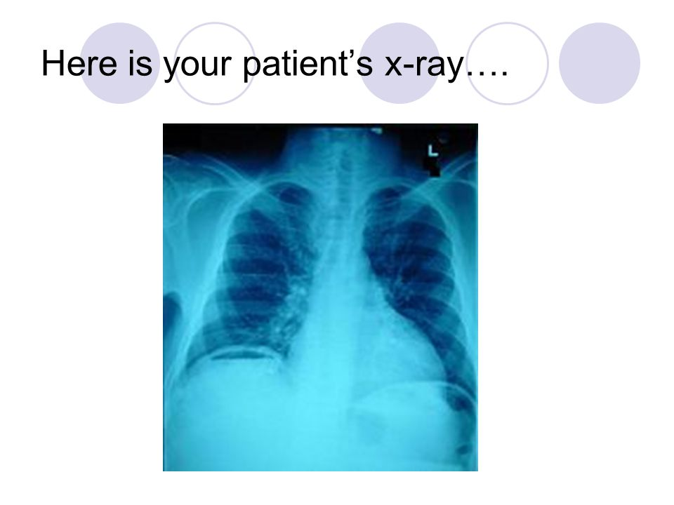 Here is your patient's x-ray….