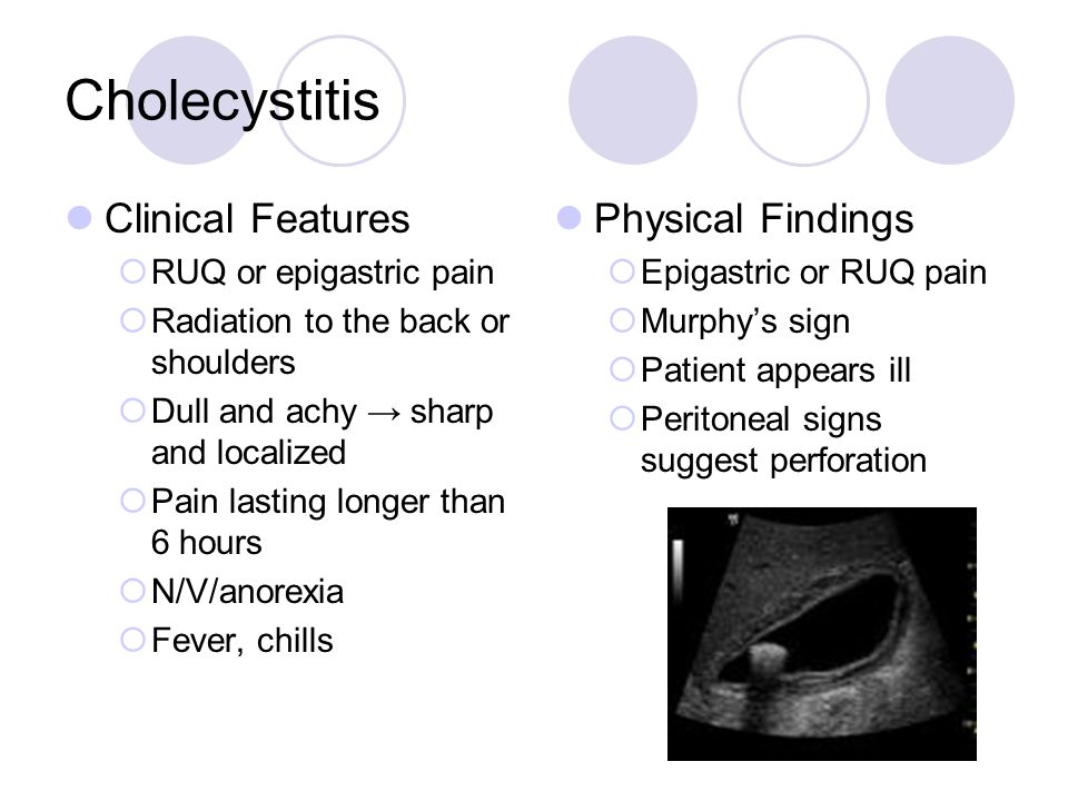 Cholecystitis Clinical Features Physical Findings