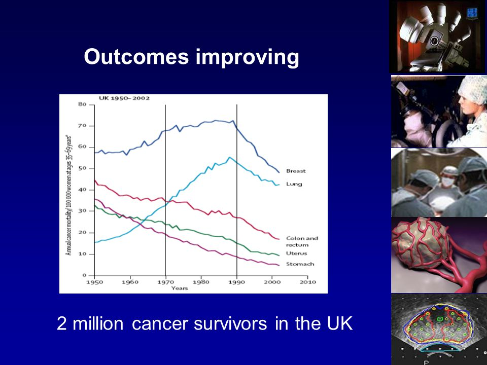 Outcomes improving 2 million cancer survivors in the UK