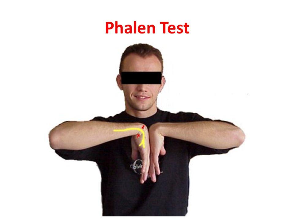 Phalen Test