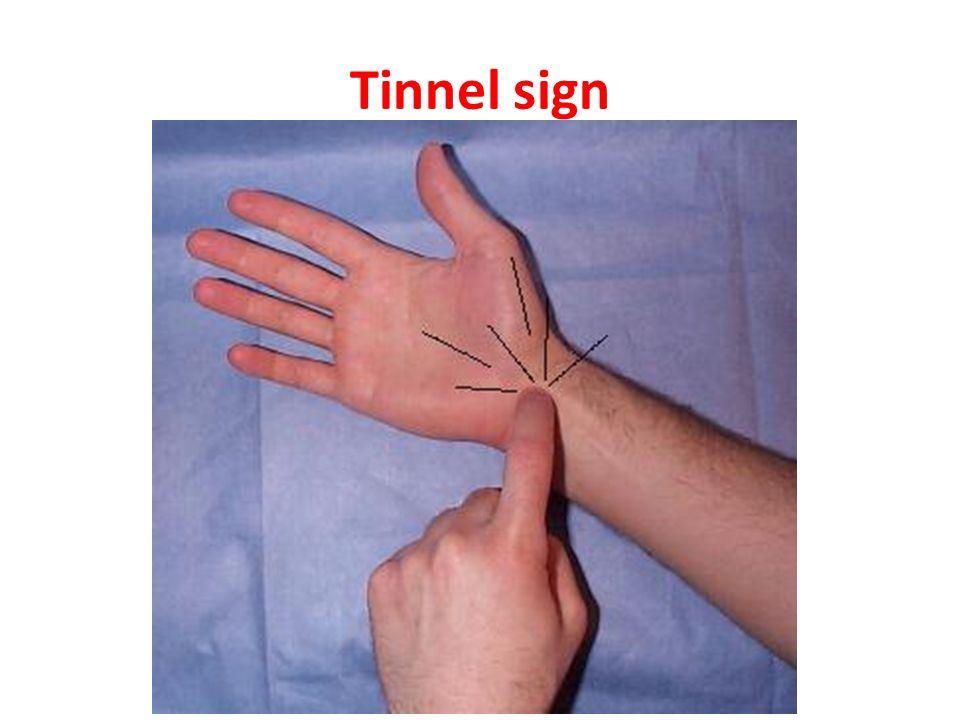 Tinnel sign