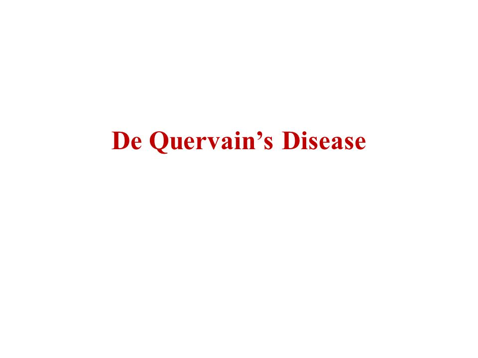 De Quervain's Disease