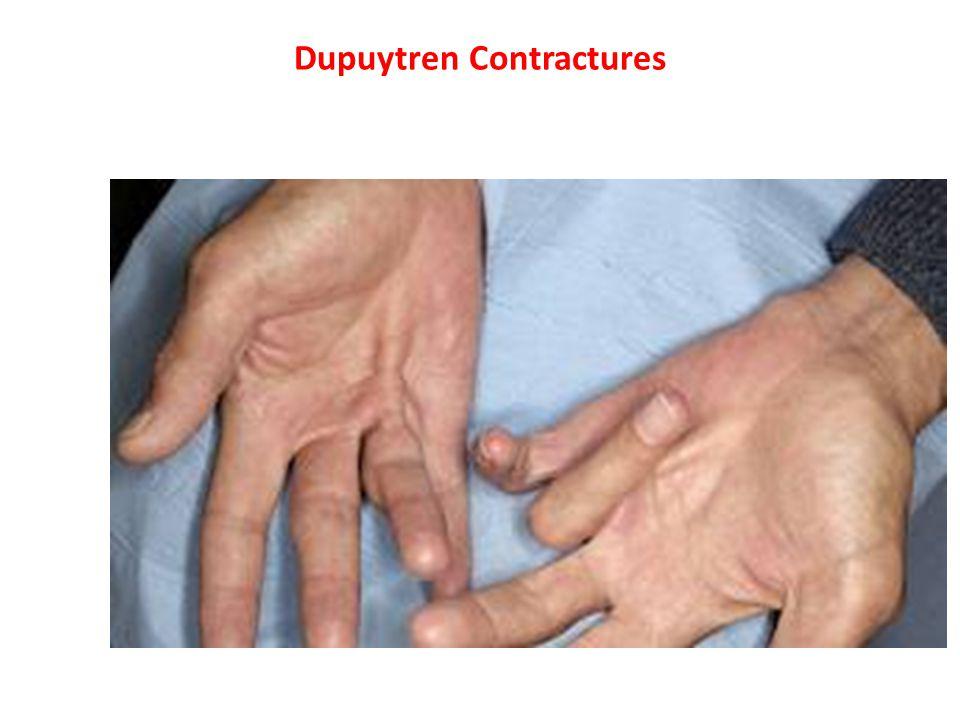 Dupuytren Contractures