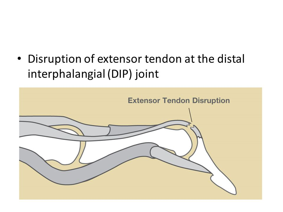 Disruption of extensor tendon at the distal interphalangial (DIP) joint