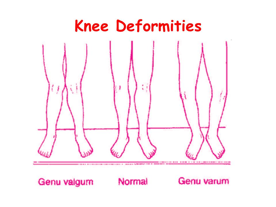 Knee Deformities