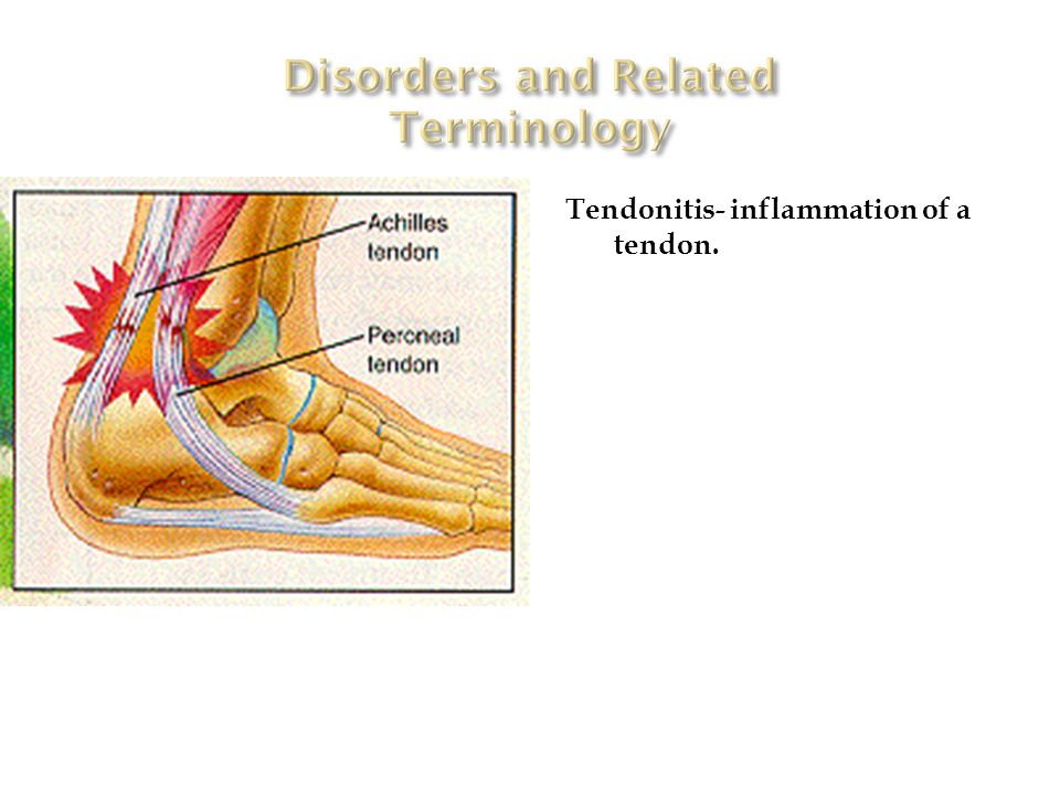Tendonitis- inflammation of a tendon.