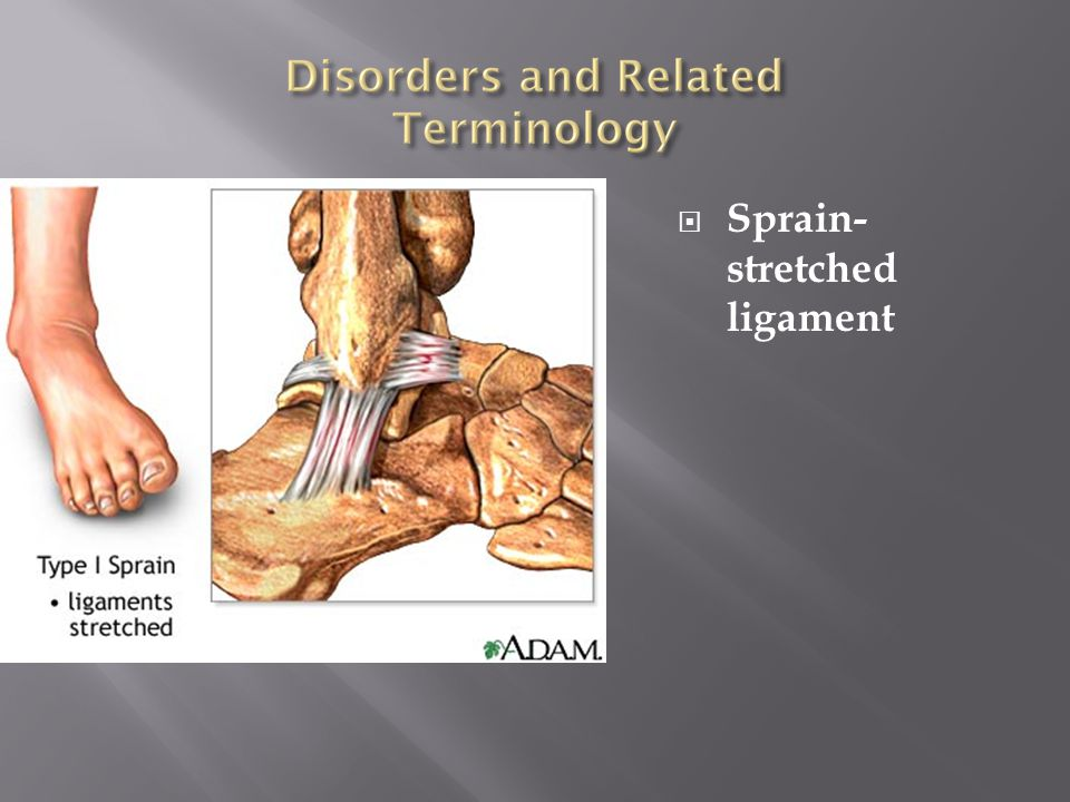 Sprain-stretched ligament