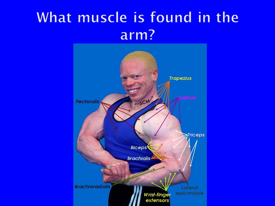 What muscle is found in the arm