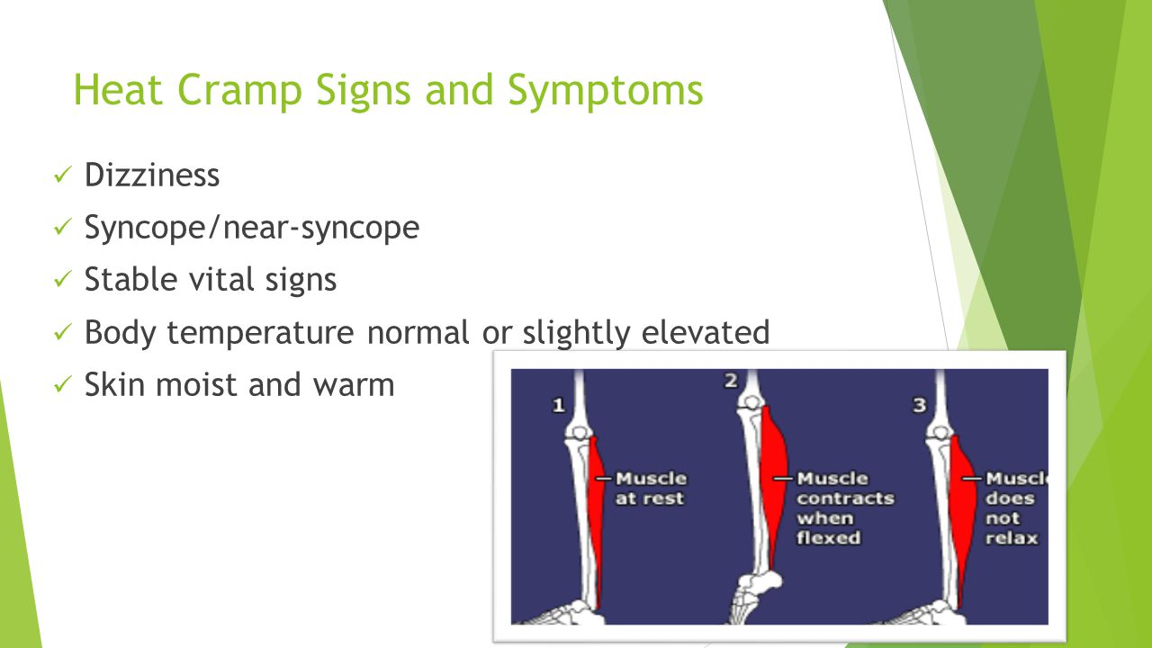 Heat Cramp Signs and Symptoms