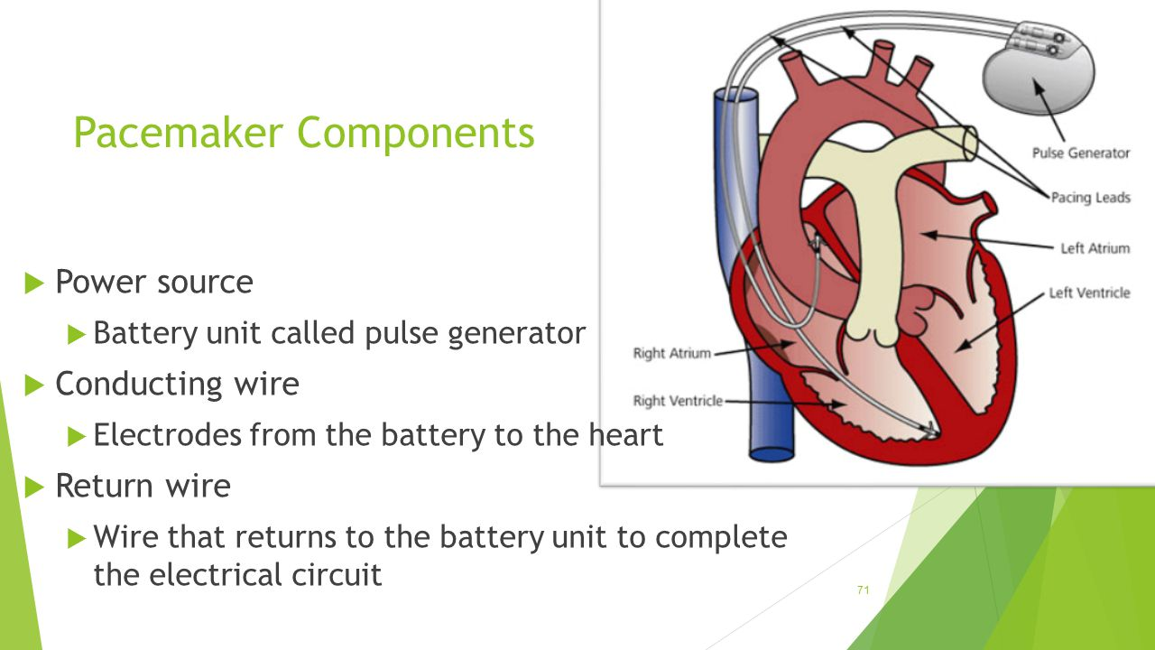Pacemaker Components Power source Conducting wire Return wire