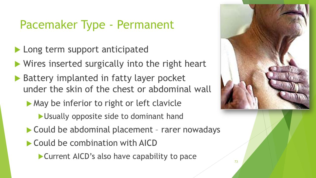 Pacemaker Type - Permanent