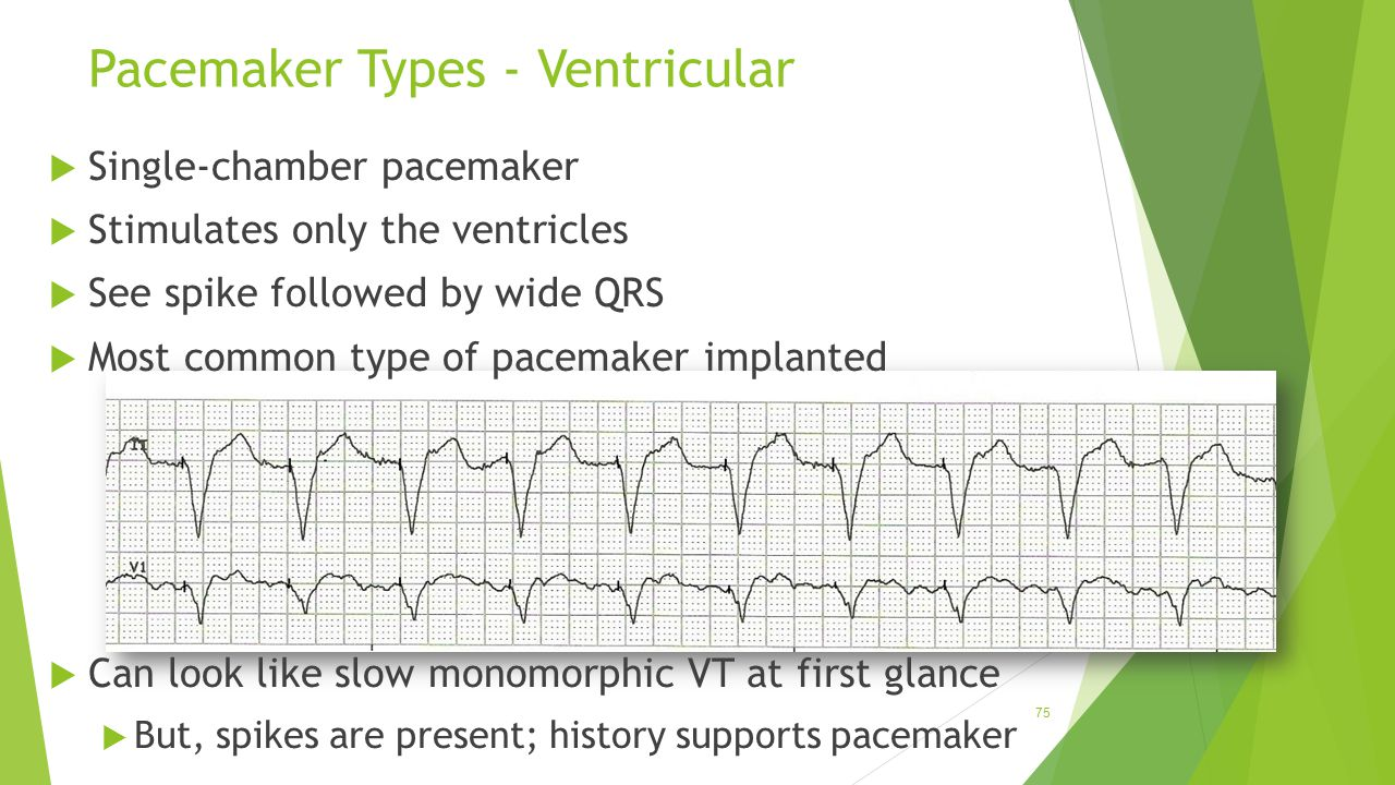 Pacemaker Types - Ventricular
