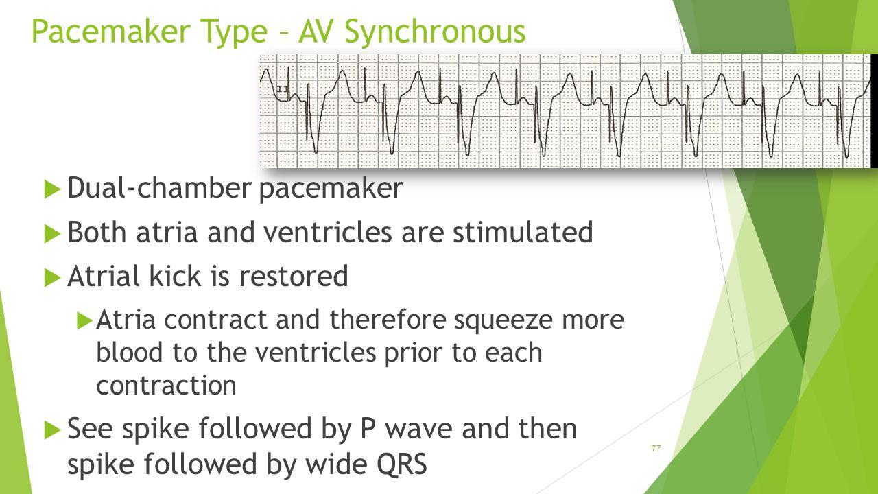 Pacemaker Type – AV Synchronous