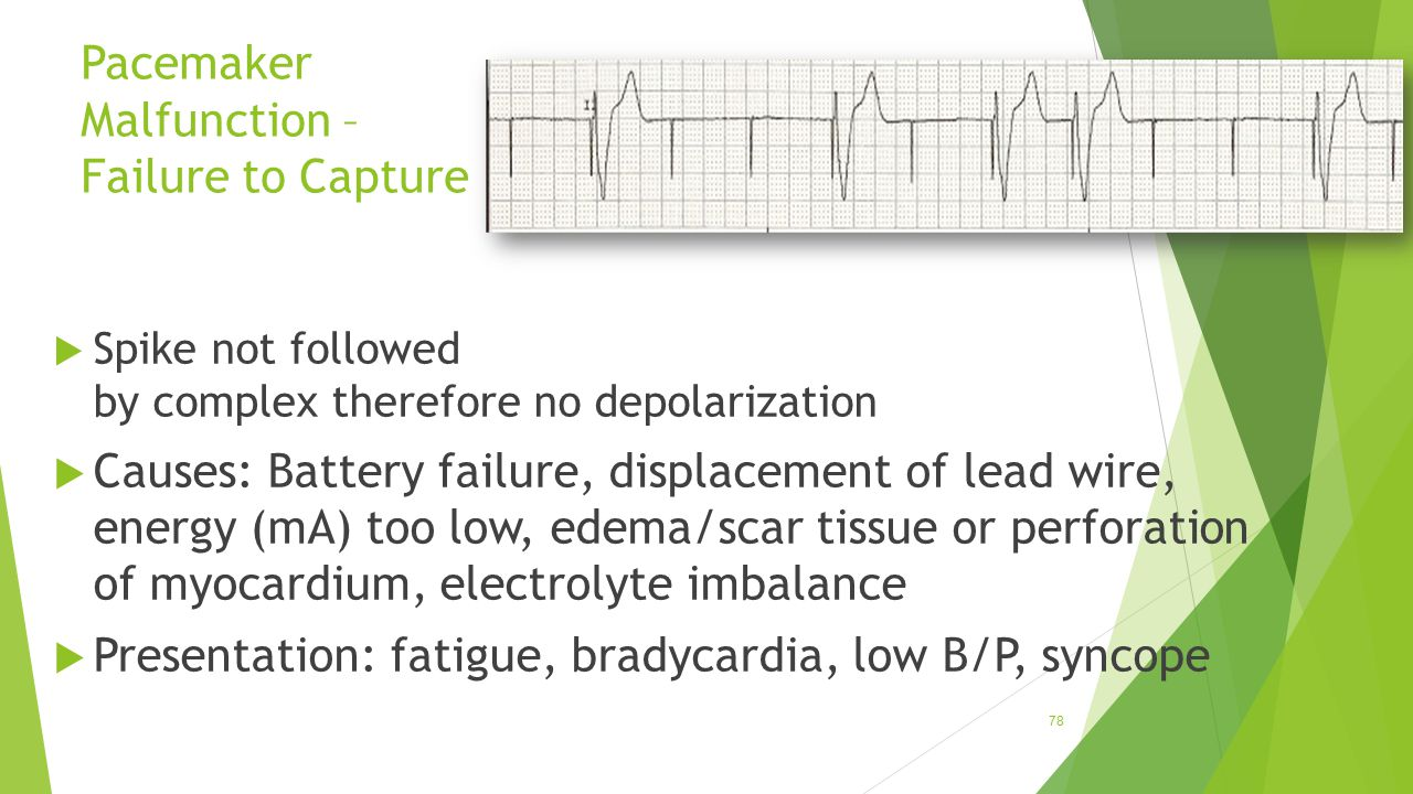 Pacemaker Malfunction – Failure to Capture