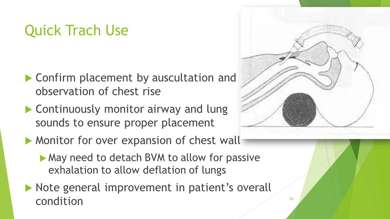Quick Trach Use Confirm placement by auscultation and observation of chest rise.