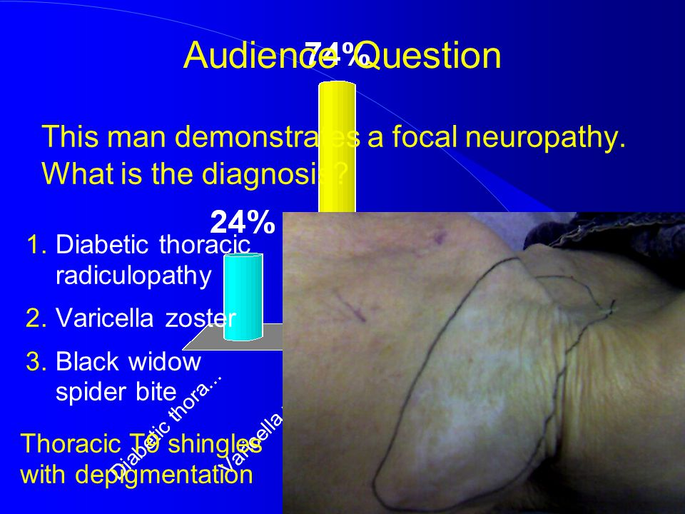 This man demonstrates a focal neuropathy. What is the diagnosis