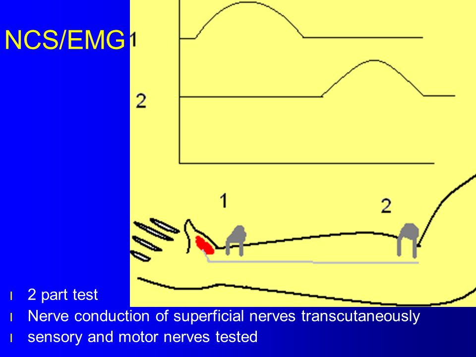 NCS/EMG 2 part test. Nerve conduction of superficial nerves transcutaneously.