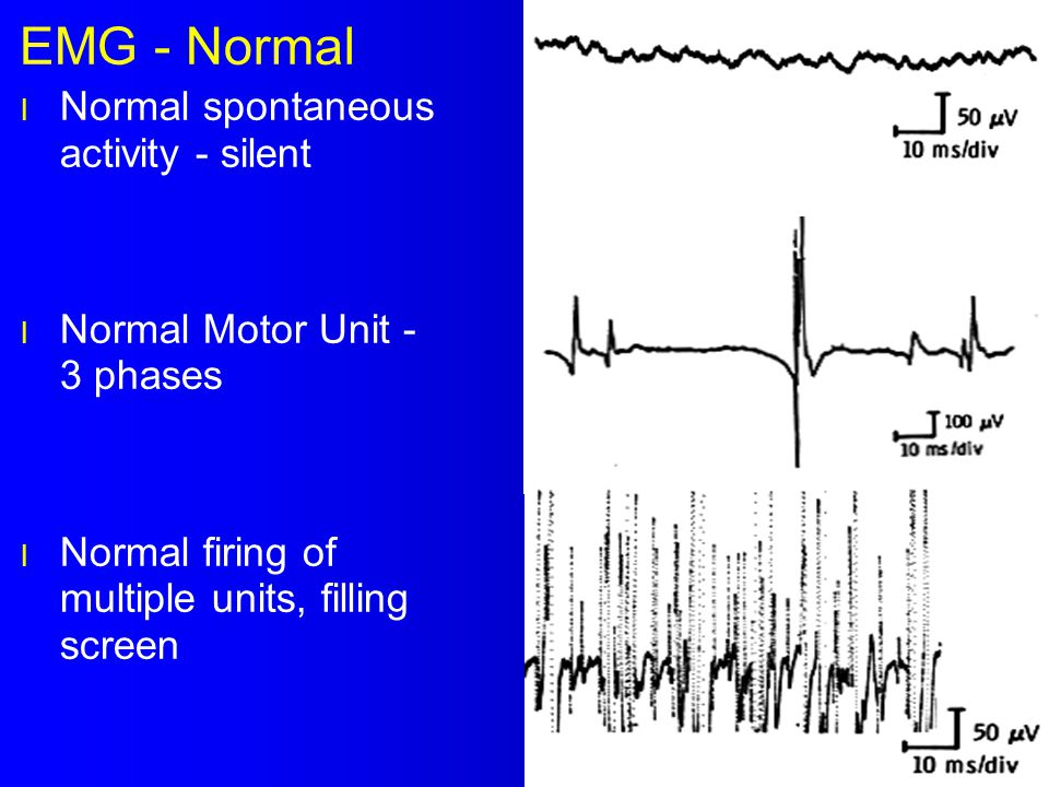 EMG - Normal Normal spontaneous activity - silent