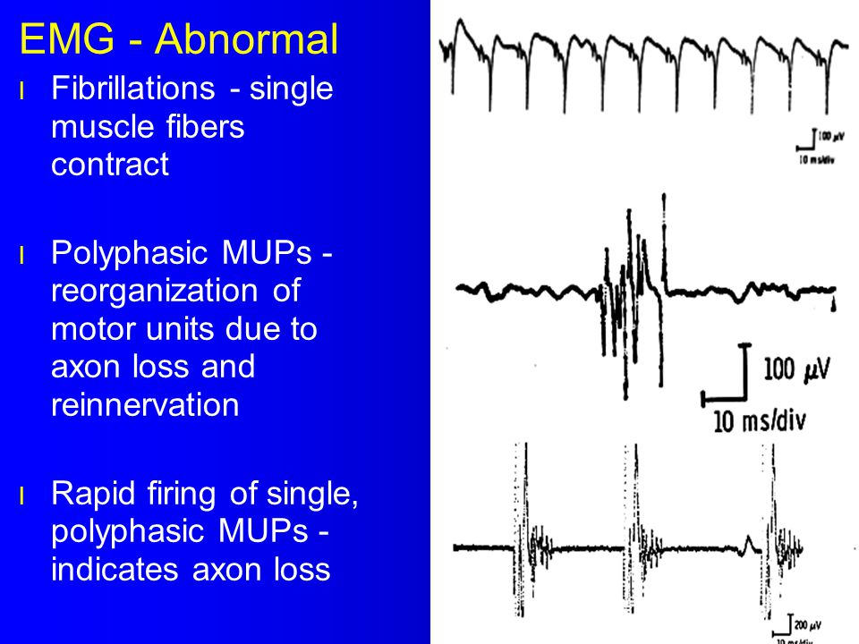 EMG - Abnormal Fibrillations - single muscle fibers contract