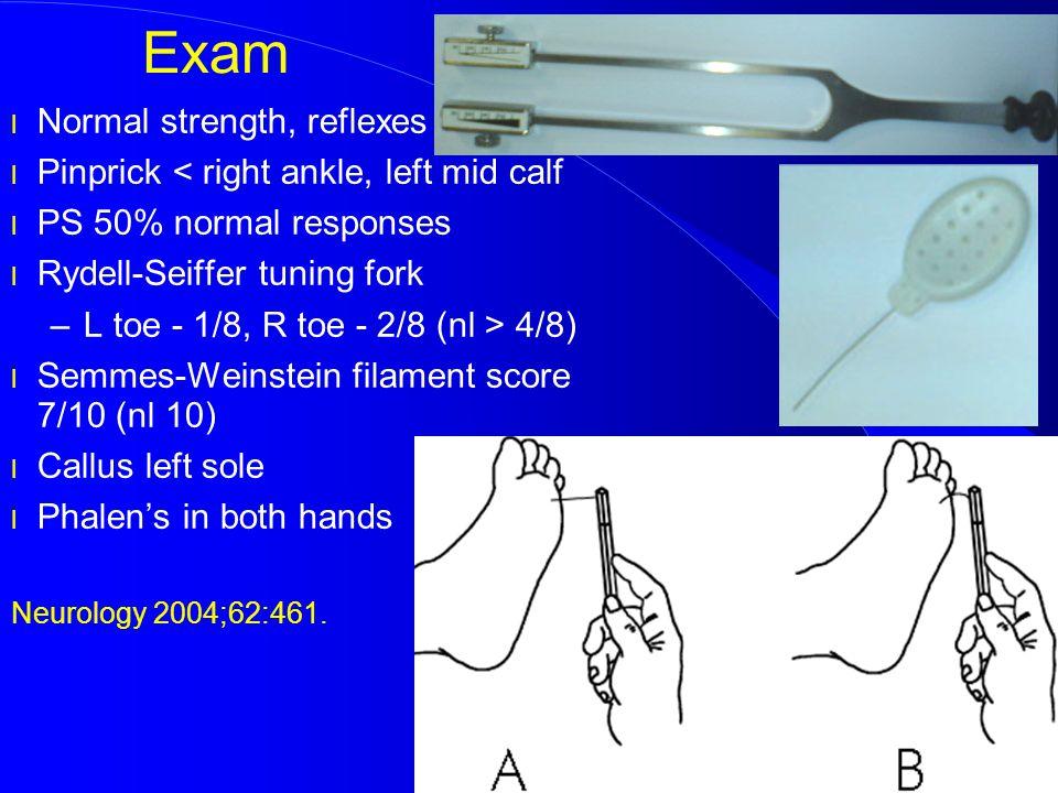 Exam Normal strength, reflexes