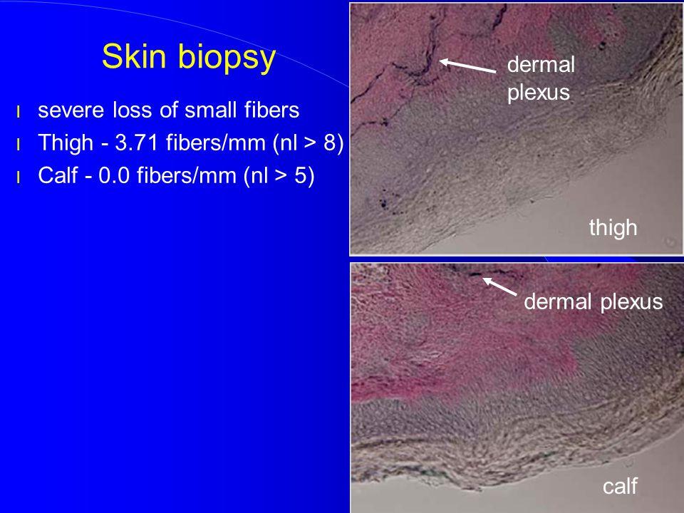 Skin biopsy dermal plexus severe loss of small fibers