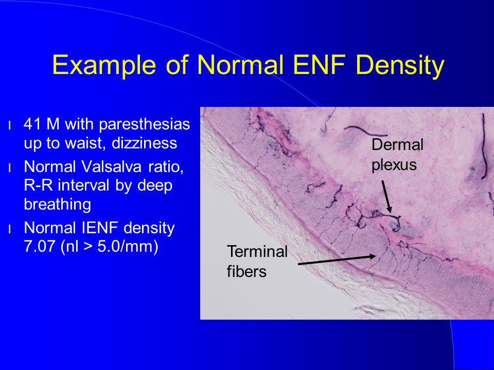 Example of Normal ENF Density