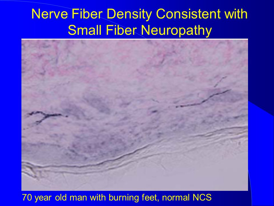 Nerve Fiber Density Consistent with Small Fiber Neuropathy