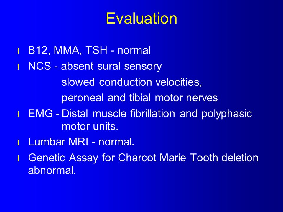 Evaluation B12, MMA, TSH - normal NCS - absent sural sensory