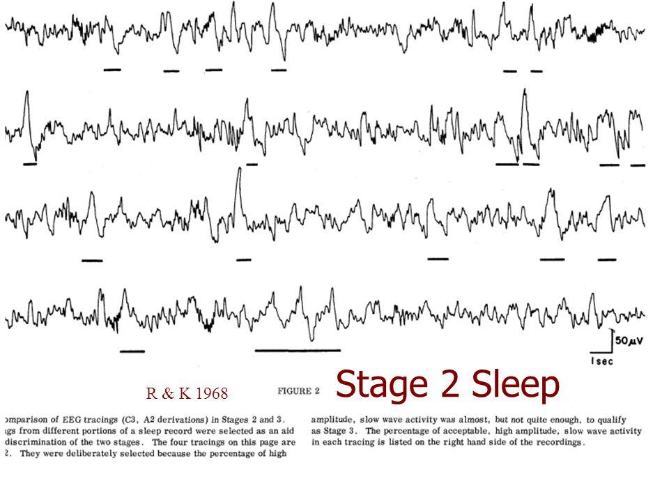 Stage 2 Sleep R & K 1968