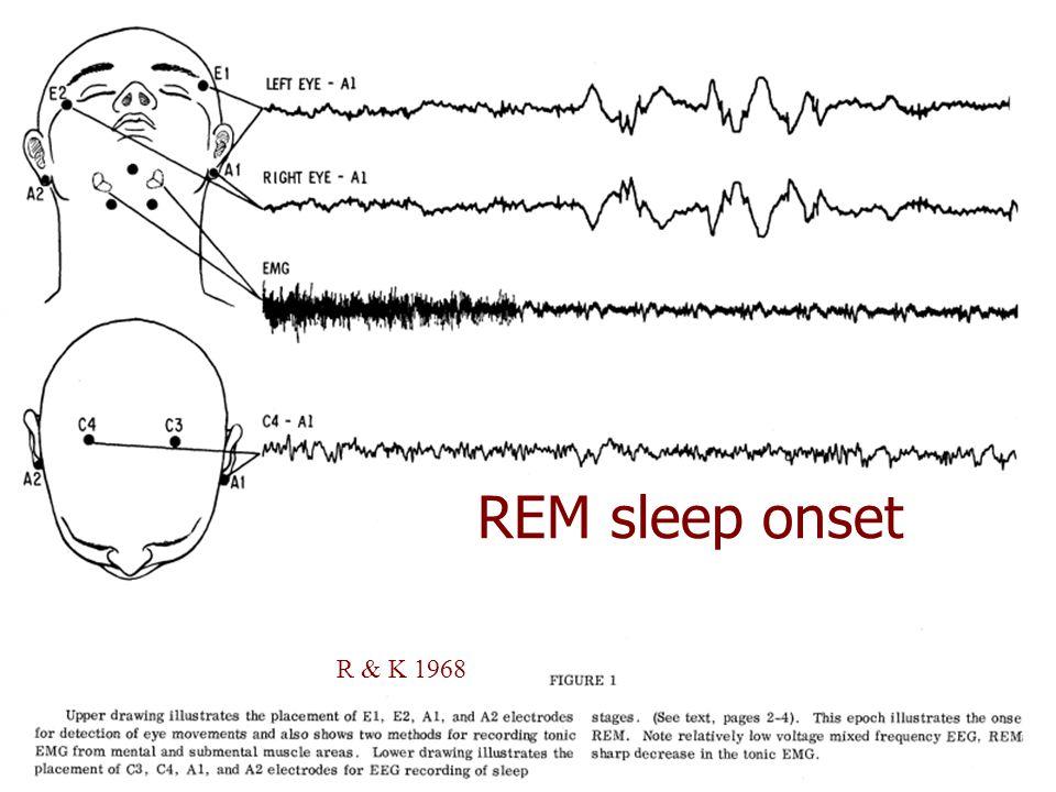 REM sleep onset Onset of REM R & K 1968