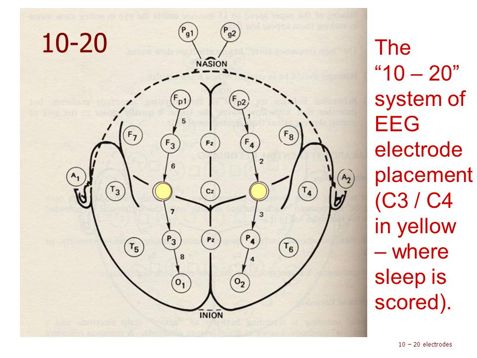 10-20 The 10 – 20 system of EEG electrode placement (C3 / C4 in yellow – where sleep is scored).