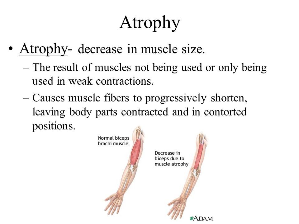 Atrophy Atrophy- decrease in muscle size.