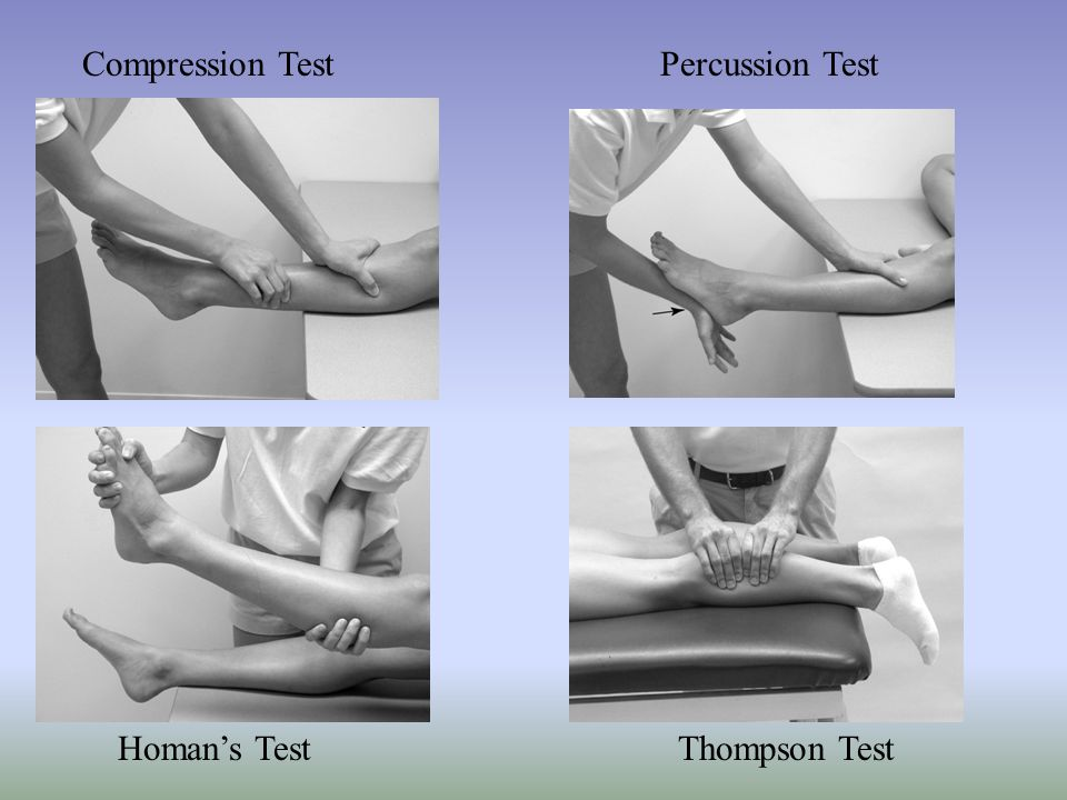 Compression Test Percussion Test Homan's Test Thompson Test
