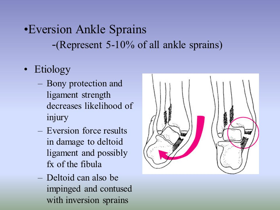 Eversion Ankle Sprains -(Represent 5-10% of all ankle sprains)