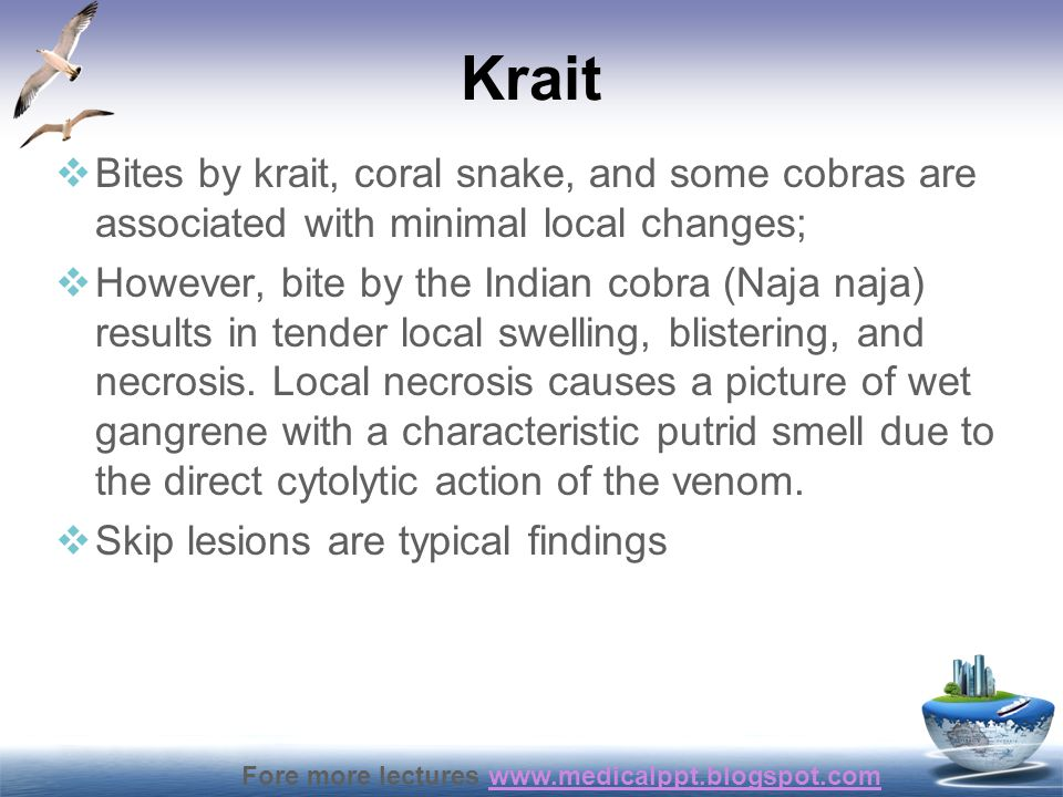 Krait Bites by krait, coral snake, and some cobras are associated with minimal local changes;