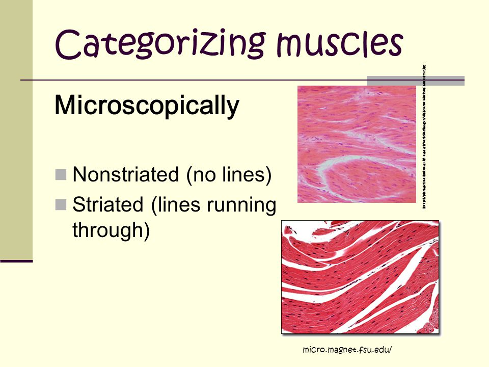 Categorizing muscles Microscopically Nonstriated (no lines)