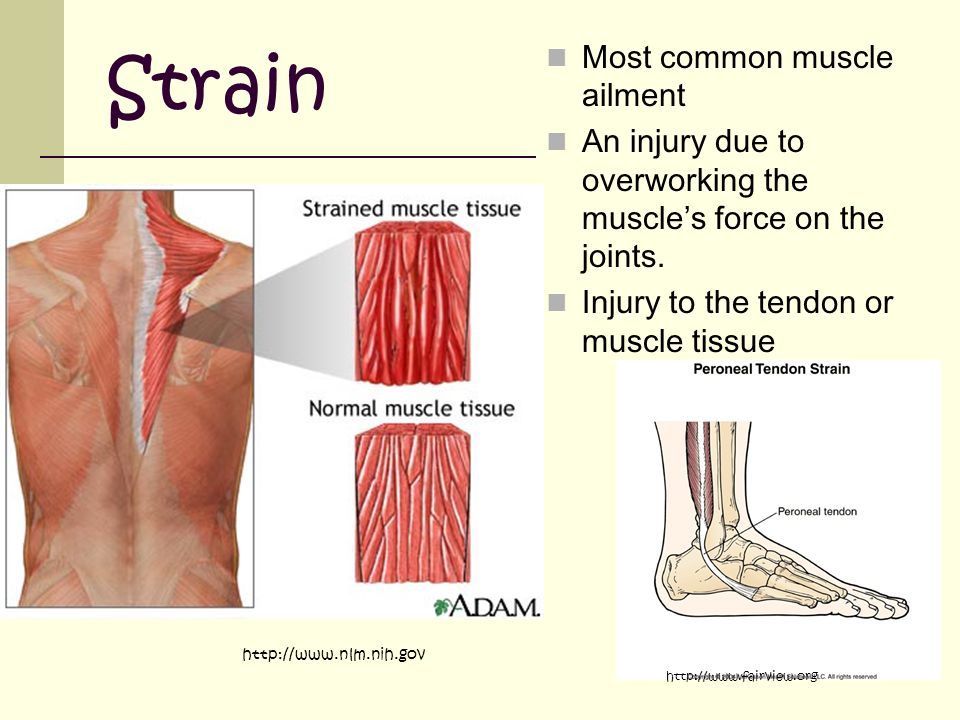 Strain Most common muscle ailment