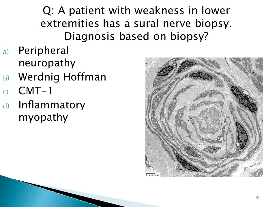 Q: A patient with weakness in lower extremities has a sural nerve biopsy. Diagnosis based on biopsy