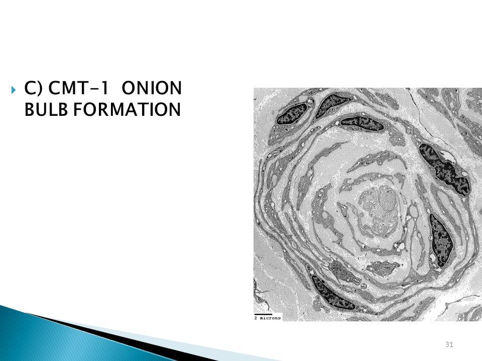 C) CMT-1 ONION BULB FORMATION