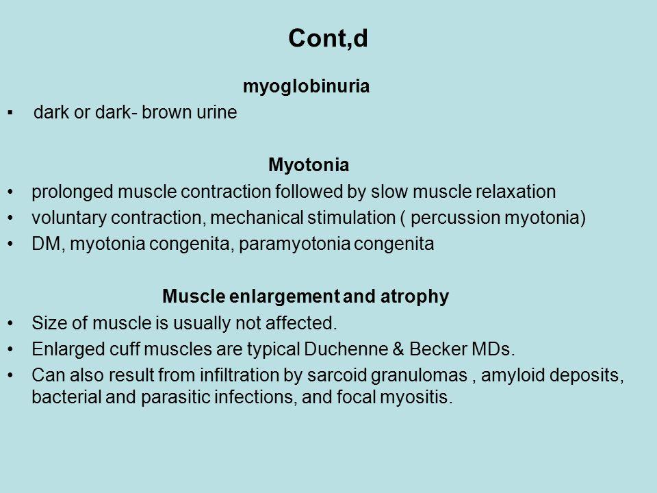 Cont,d myoglobinuria ▪ dark or dark- brown urine Myotonia