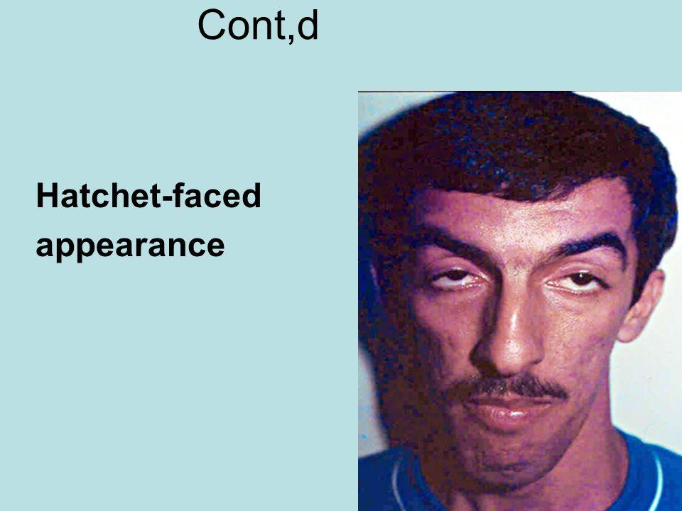 Cont,d Hatchet-faced appearance
