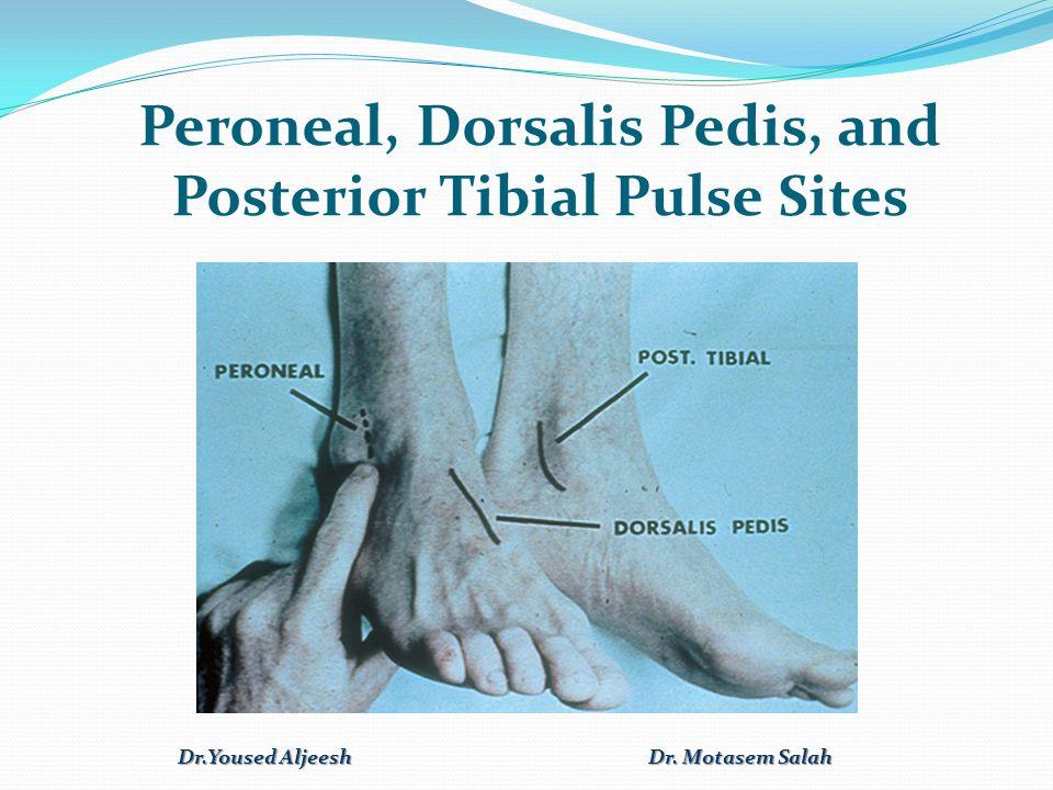 Peroneal, Dorsalis Pedis, and Posterior Tibial Pulse Sites