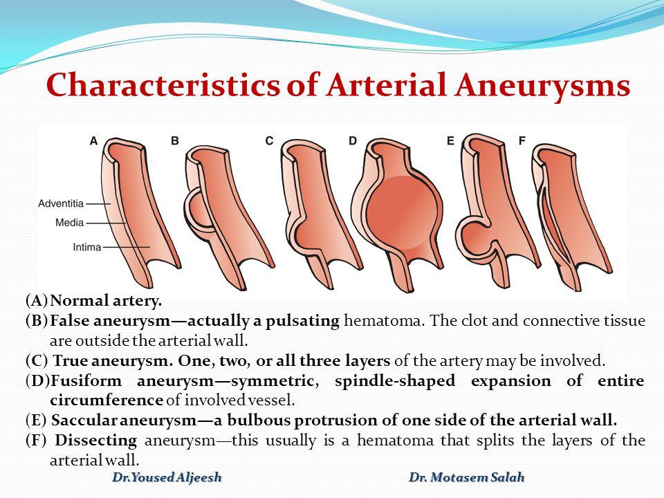 Characteristics of Arterial Aneurysms