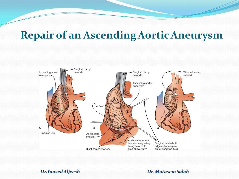 Repair of an Ascending Aortic Aneurysm