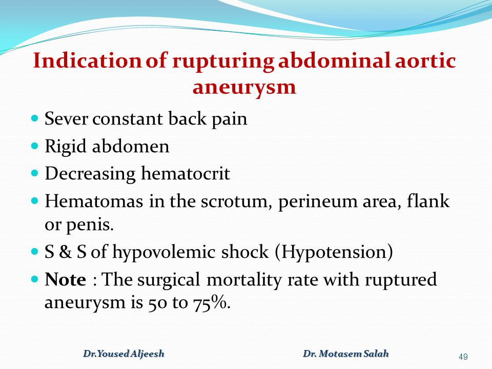 Indication of rupturing abdominal aortic aneurysm