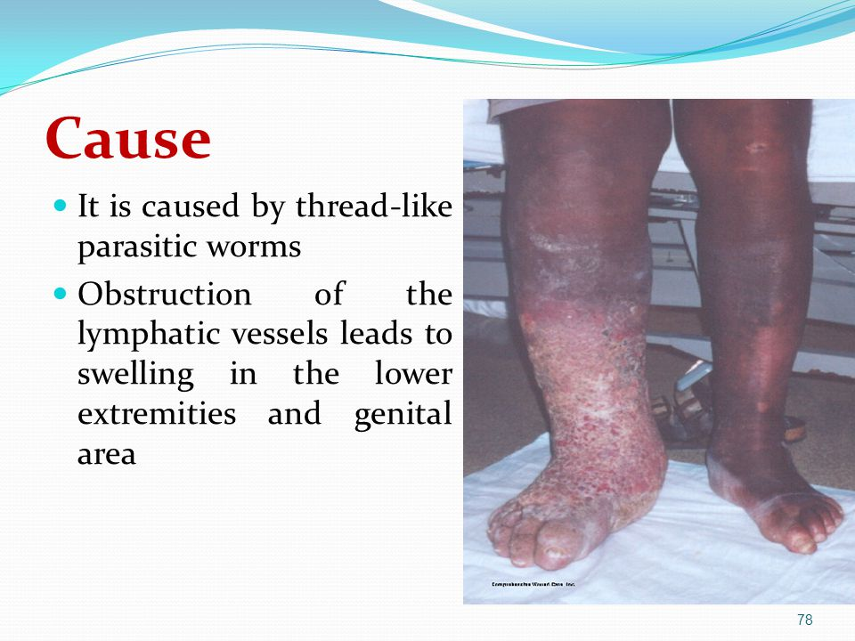 Cause It is caused by thread-like parasitic worms